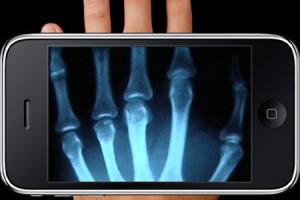 Innovation : transformez votre smartphone en caméra à rayon X