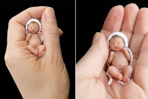 Miracle : un bébé survit alors qu'il était prématuré de 39 semaines