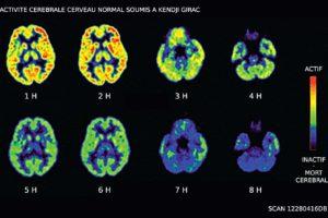 Science : du Kendji Girac plus de 7h56 d'affilé détruit votre cerveau irrémédiablement