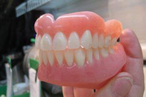 2500 € d'amende à cause de sa femme et de son dentier !